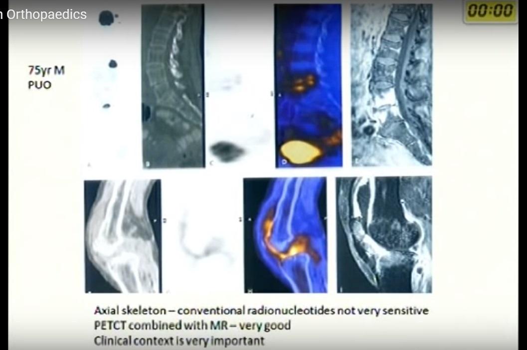 PET scan in Orthopaedics