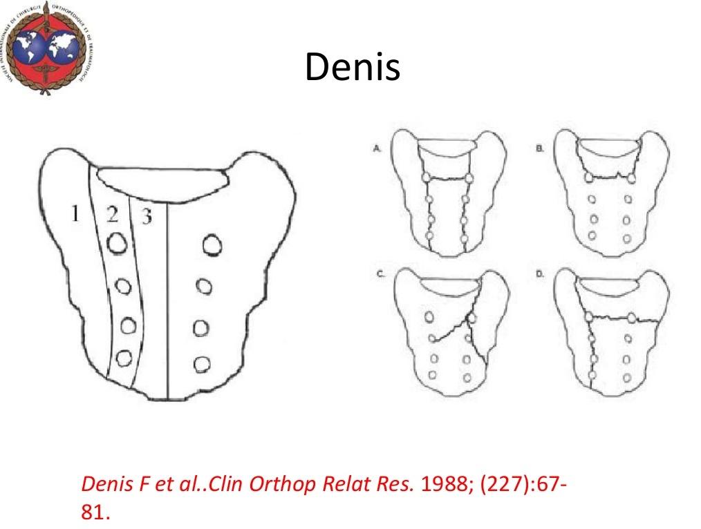 sacral fractrue OP