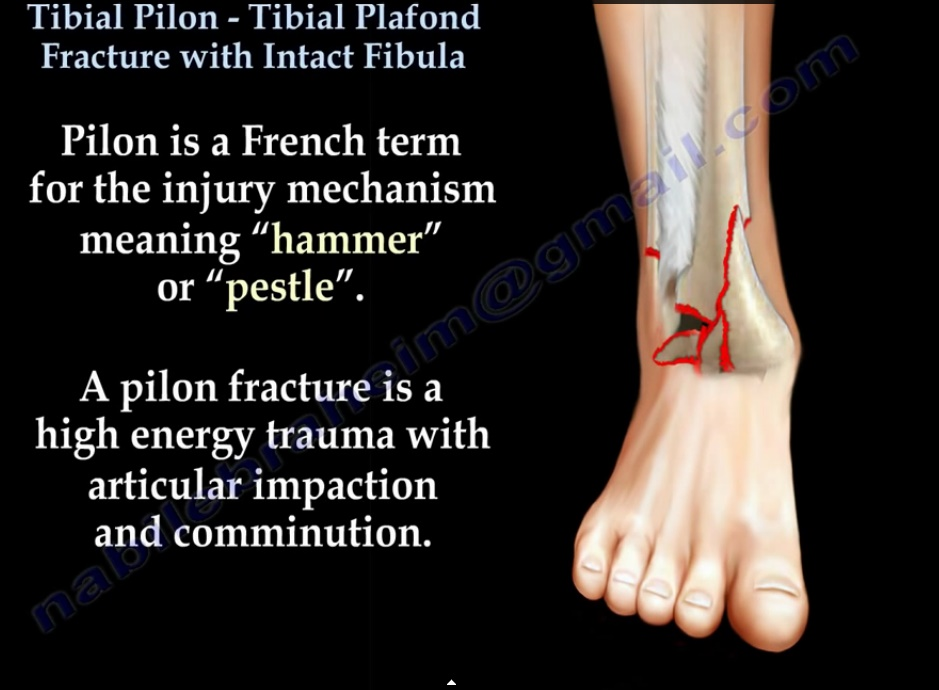 Tibial Pilon Fracture-with Intact fibula ...