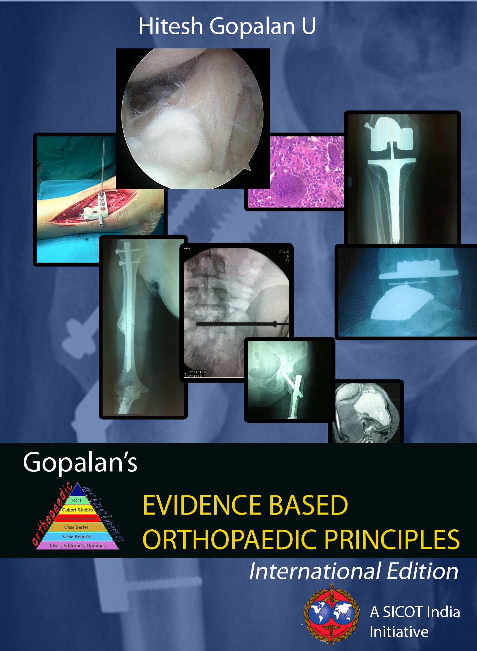 slipped femoral capital epiphysis slideshare
