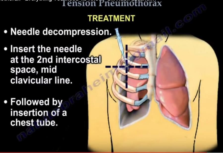 tension pneumothorax needle decompression - 900×618