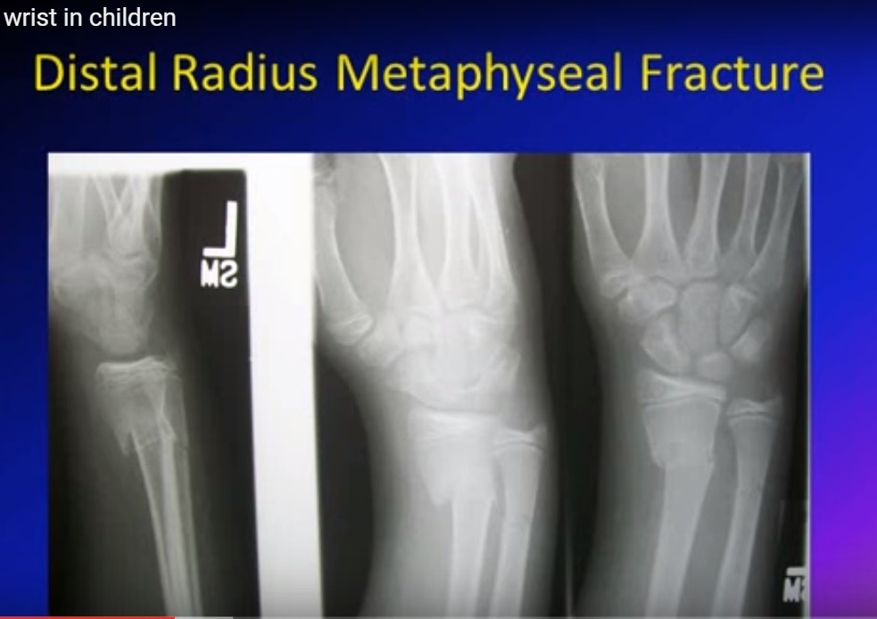 Distal radius in children