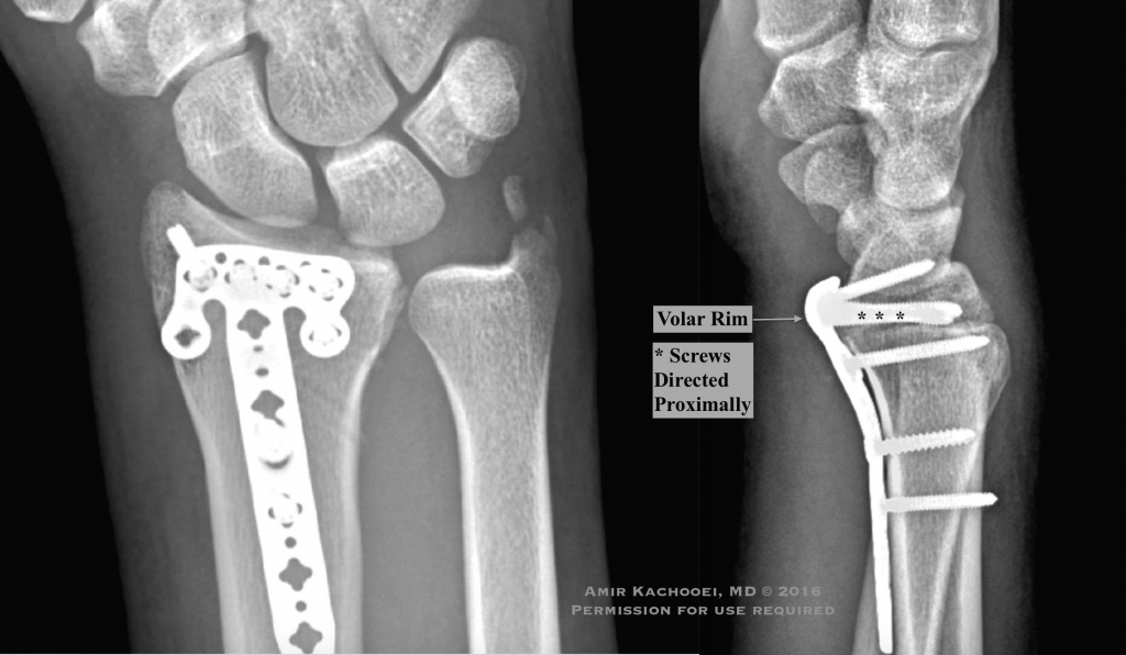 Fractures of the distal radius are very common Colles Smith and Barton fracture are few of these fractures differentiated by their fracture pattern and displacements