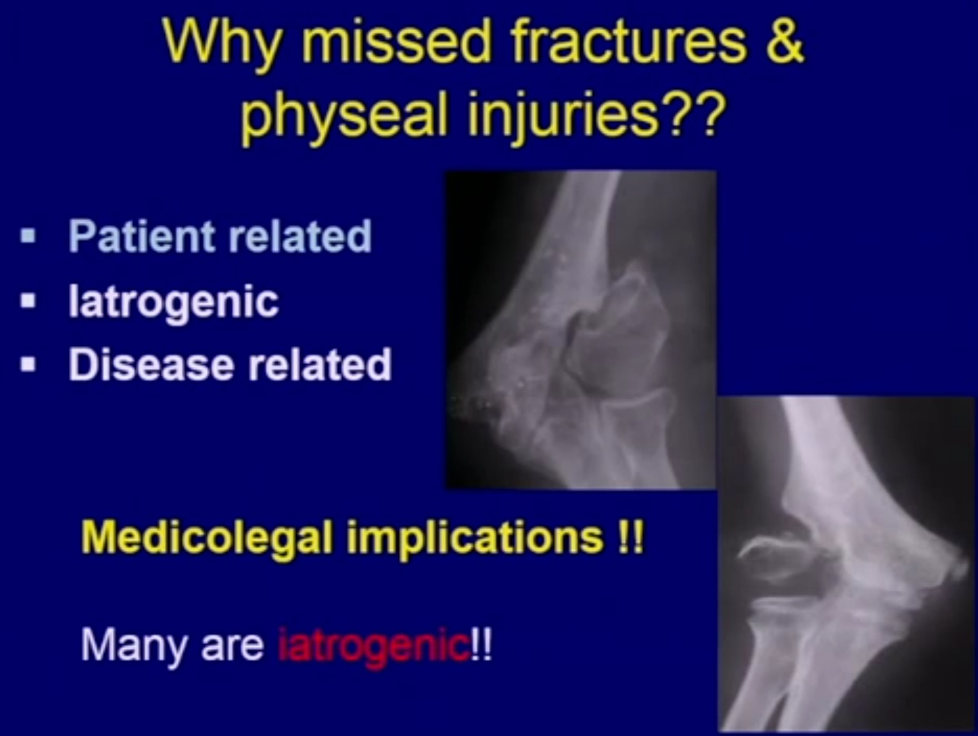Missed fractures