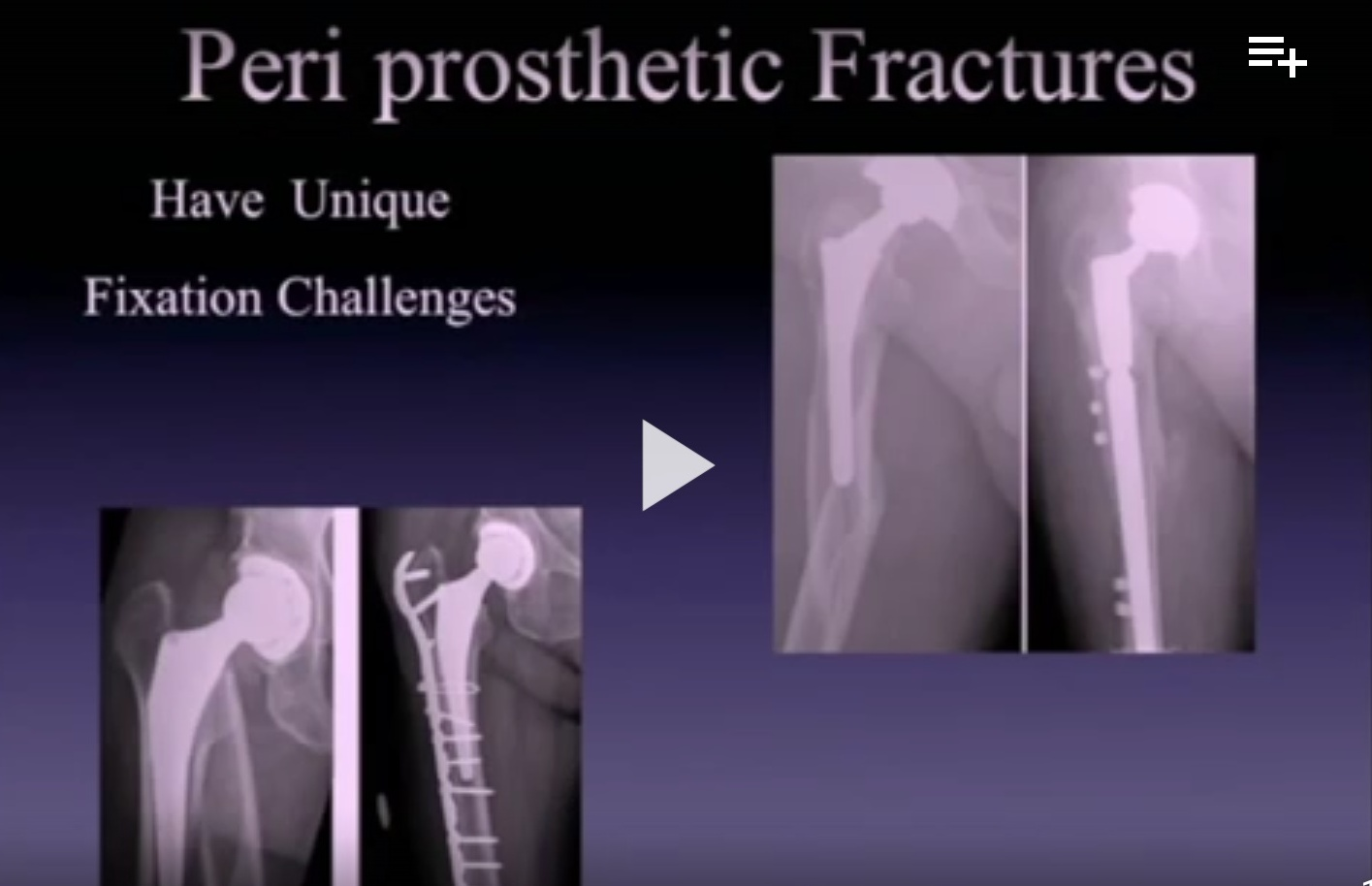 Periprosthetic fracture Rx