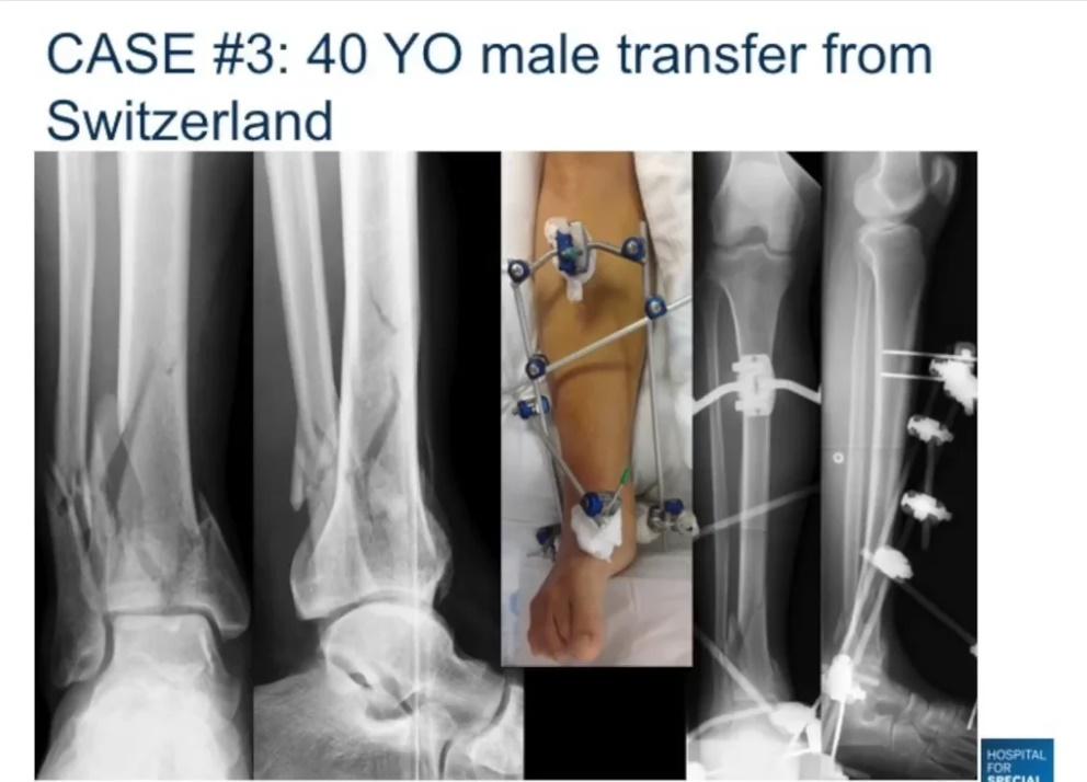 Anterolateral pilon fracture
