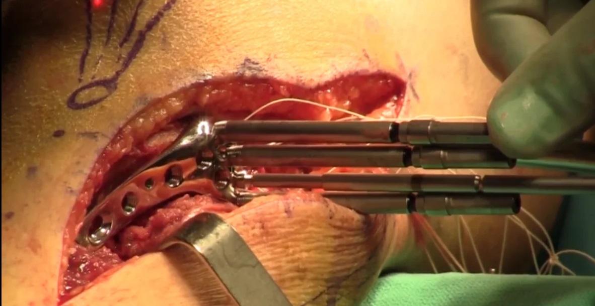 Anterolateral tibia