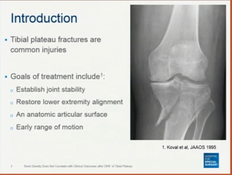 Does Bone Density affect outcomes in Tibial Plateau fixations