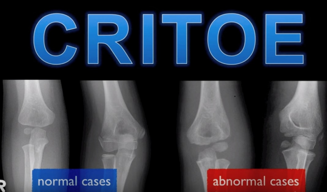Elbow ossification centres