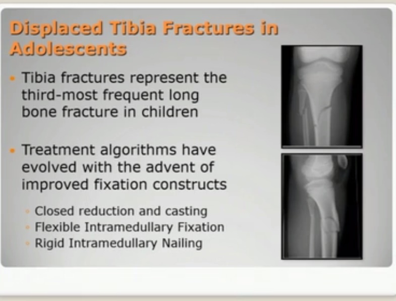 Operative Vs Conservative Management of Displaced Tibial Shaft Fractures in Adolescents
