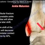 ankle-fracture-special-scenarios