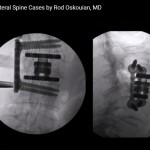 difficult-lateral-spine-cases