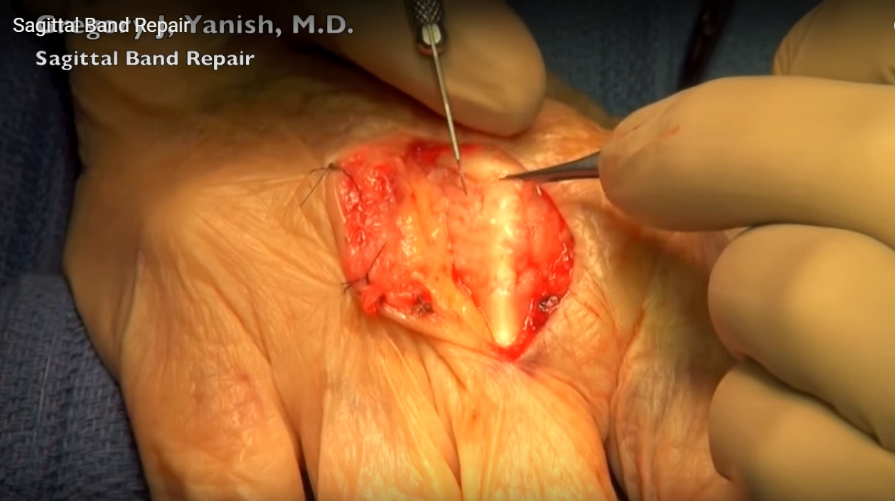 hand-sagittal-band-repair