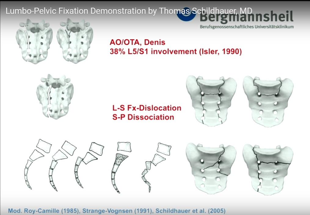http://orthopaedicprinciples.com/wp-content/uploads/2016/09/Spine-lumbopelvic-fixation-demo.jpg