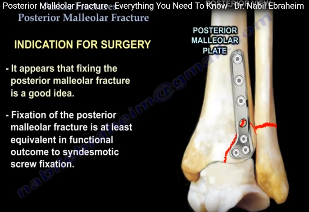 Posterior Malleolar Ankle Fracture Orthopaedicprinciples