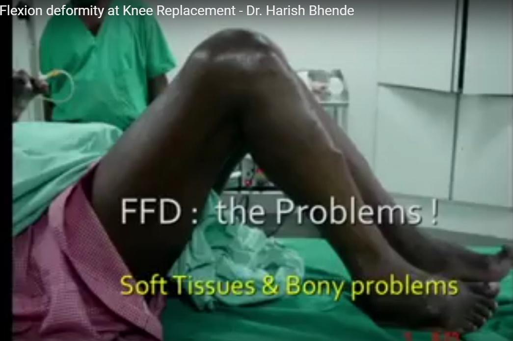 ffd-knee