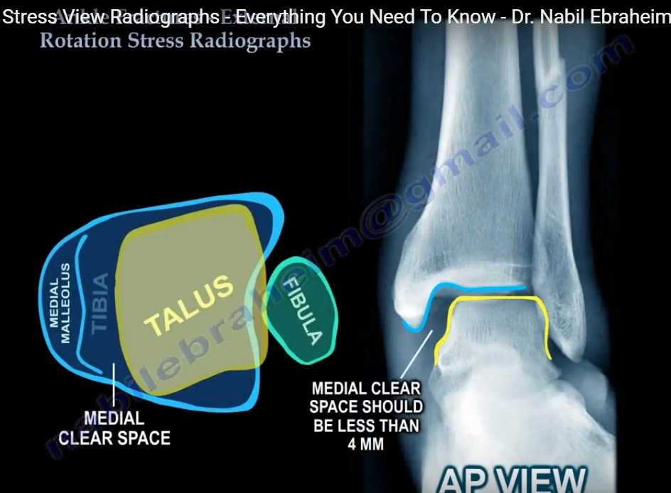 ankle-radiography