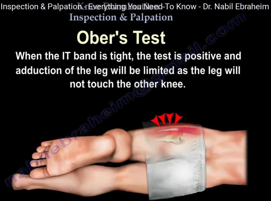 examination-knee