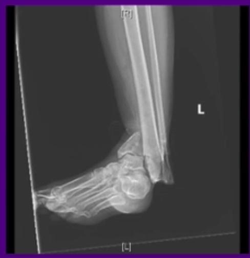 fibular-im-nail