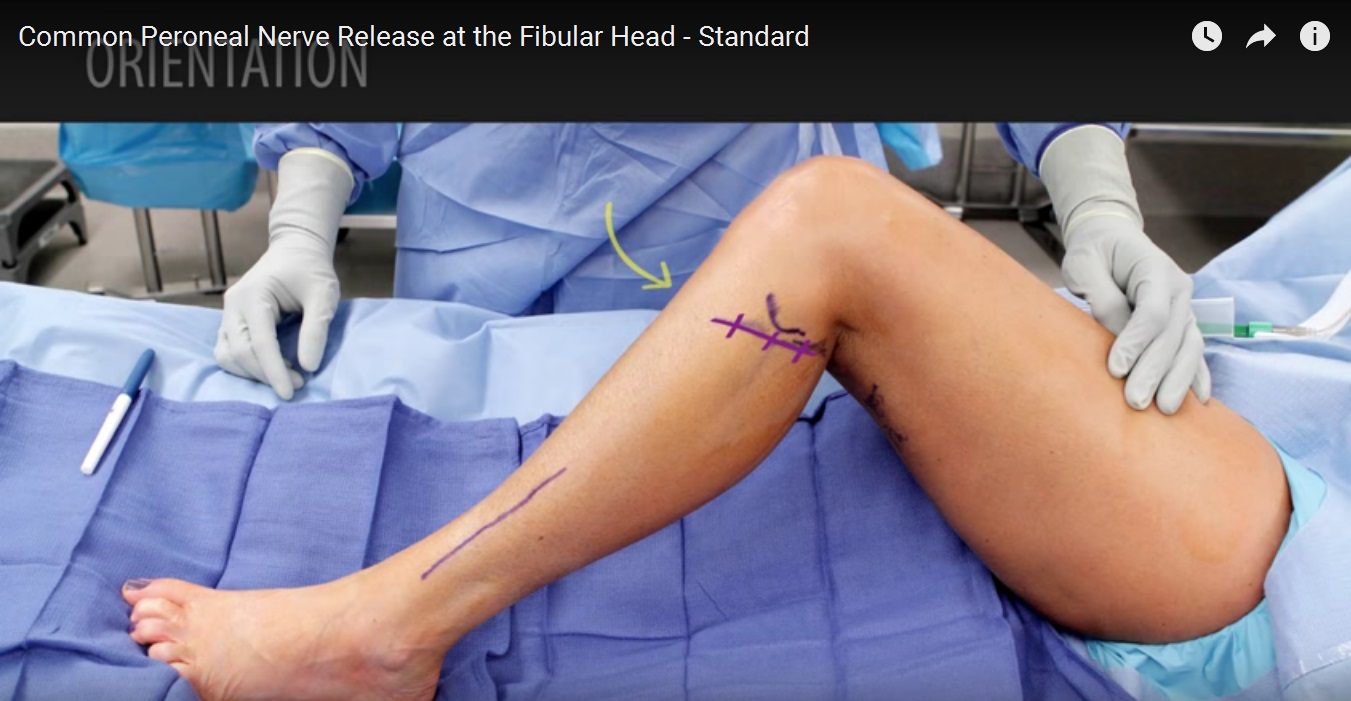 peripheral-nerve-cpn-release-at-fibular-head