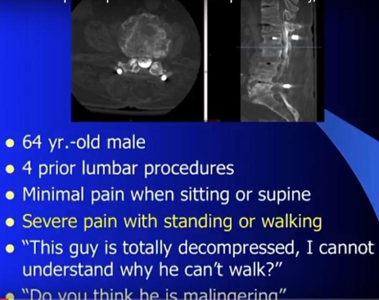 spinal-balance