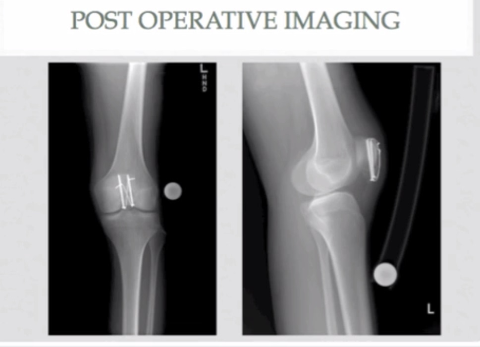 Orif Patella Fracture With Tension Band Construct