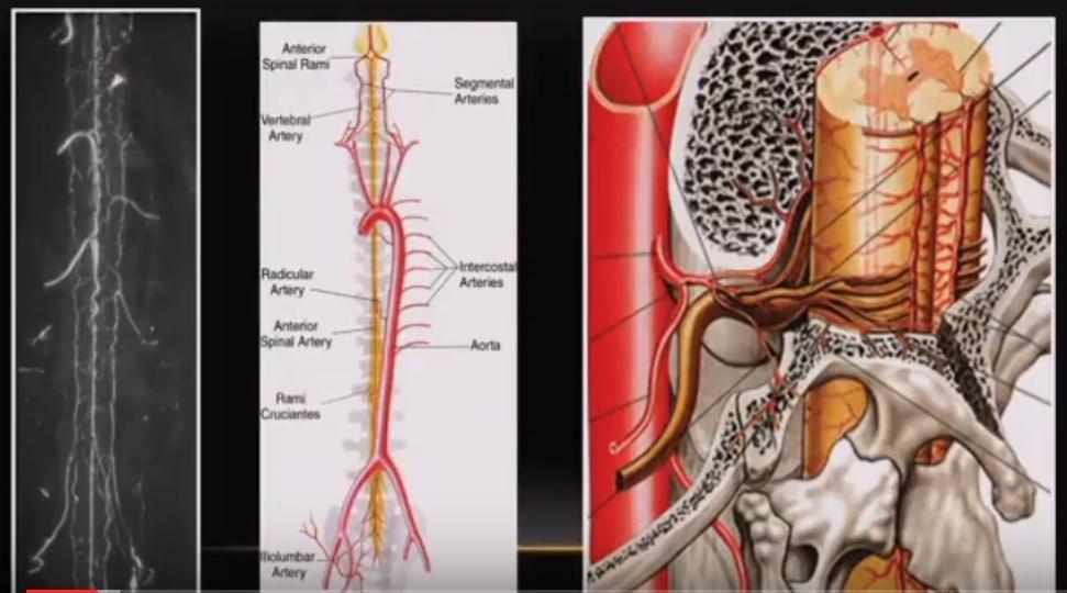 spinal-vascular-malformation