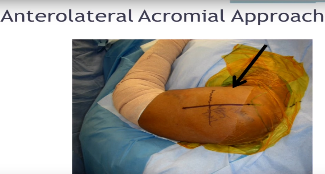Anterolateral acromial approach