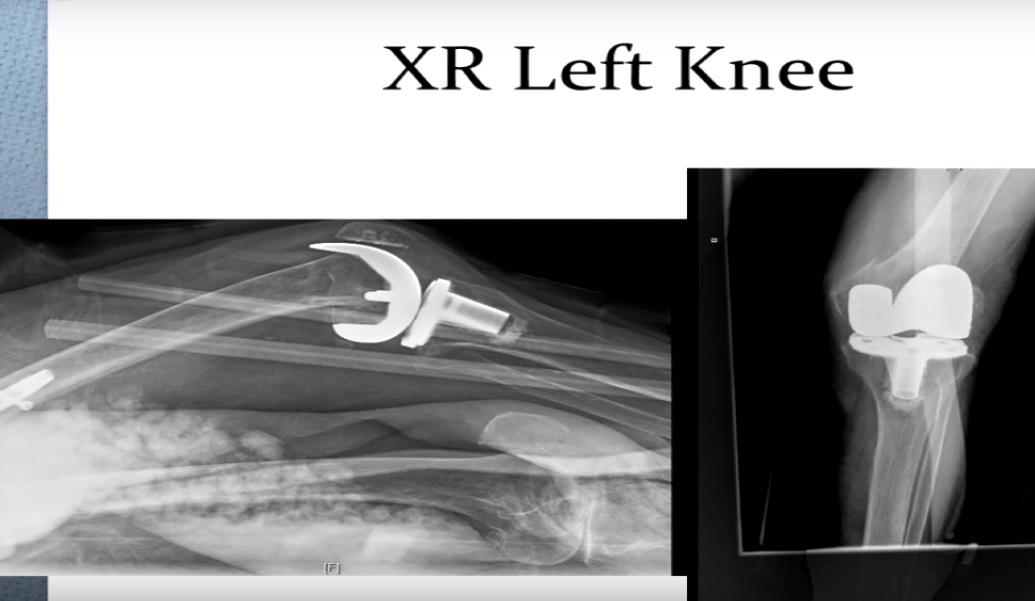 periprosthetic knee