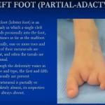 Congenital Lower Limb Deformities