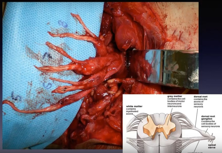 Nerve reconstruction dominic power