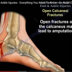 Open foot and ankle Injuries