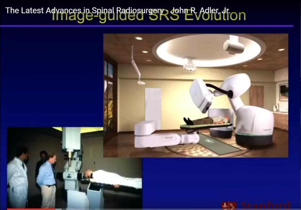 Spinal Radiosurgery
