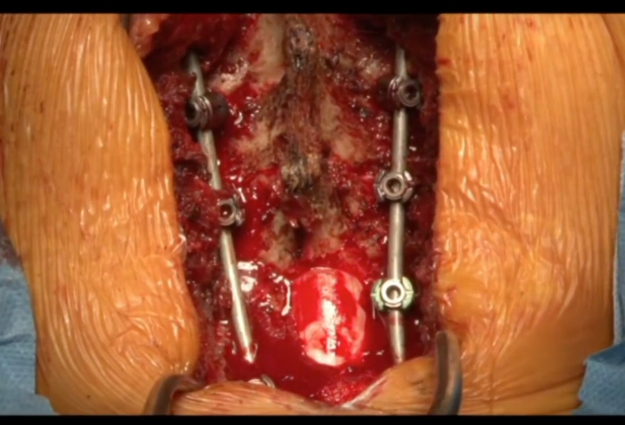 Cervical Spine Deformity Correction