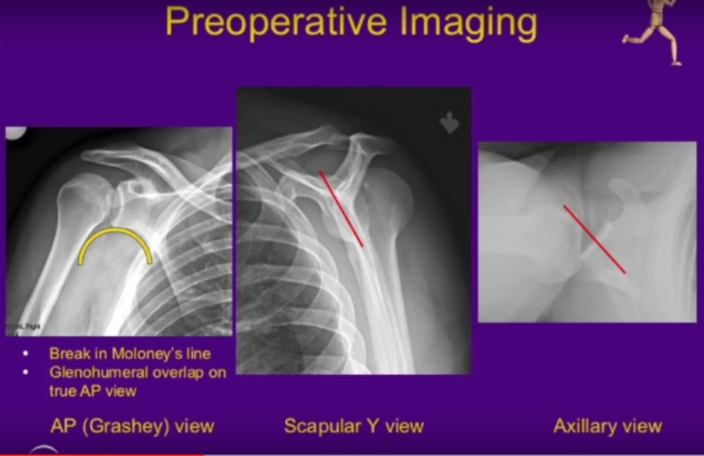Closed reduction and subscapularis transfer for Locked posterior dislocation