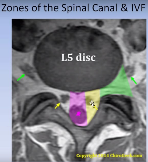 Hoe to read a Lumbar MRI