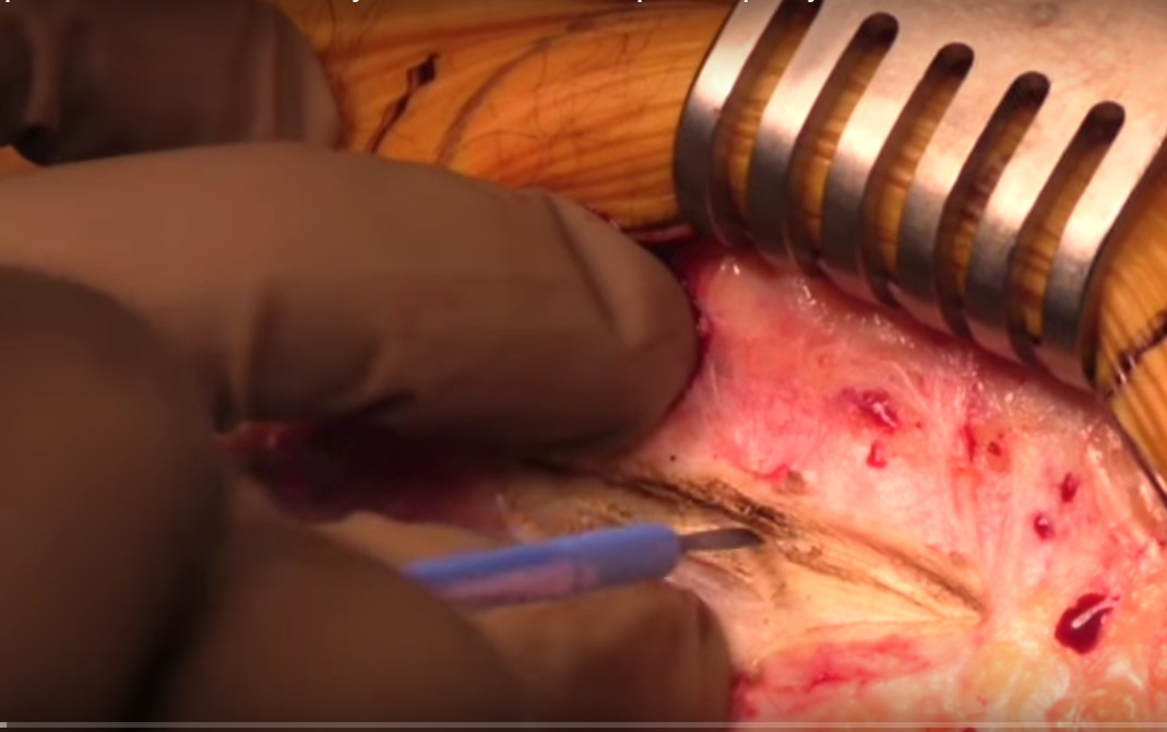 Posterior Oblique Trochanteric osteotomy for Revision Hip Arthroplasty