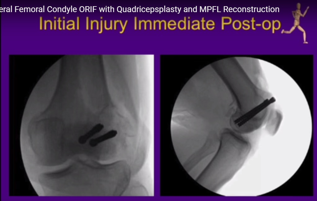 Revision lateral femoral condyle ORIF and MPFL Reconstruction