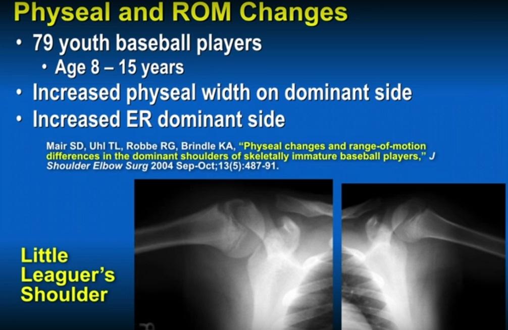 Shoulder Injuries in Children