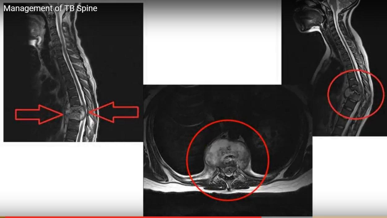 TB spine basics