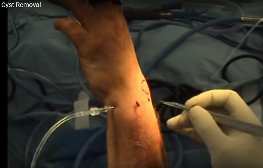 Arthroscopic Assisted Excision of Ganglion Cyst