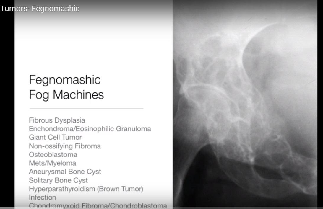 Bone Tumor Mnemonic FOGMACHINE