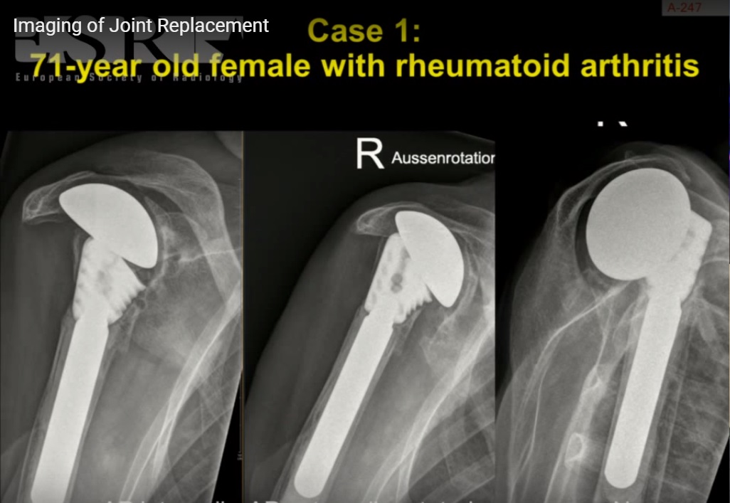 Imaging of Joint Replacement