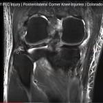MRI in PLC injury