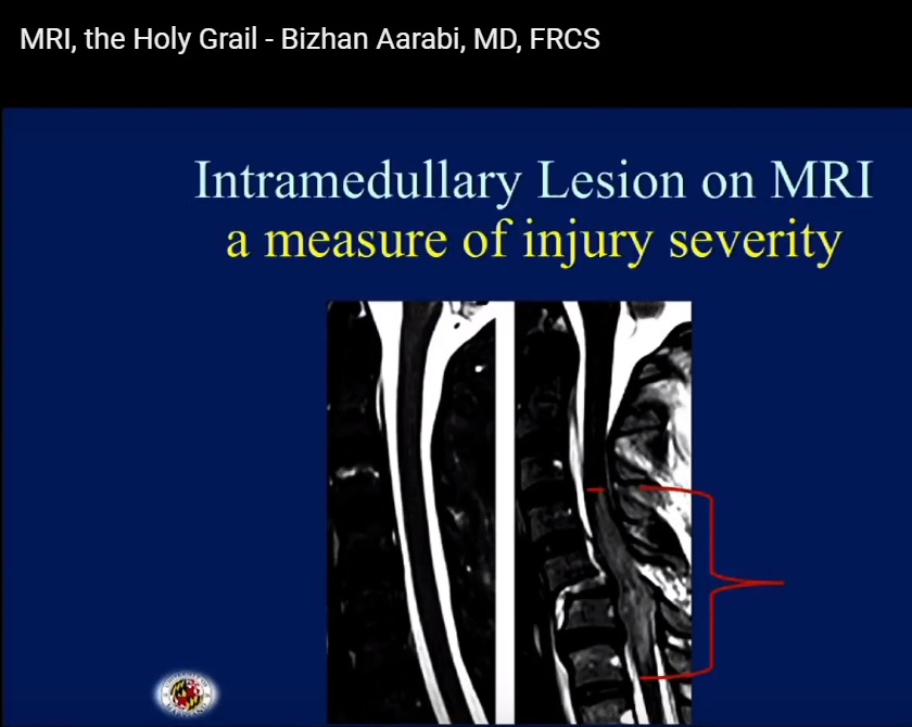 MRI the Holy Grail in spinal cord injury