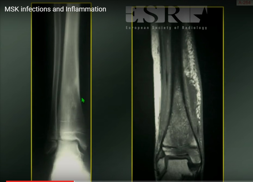 Radiology of MSK infections