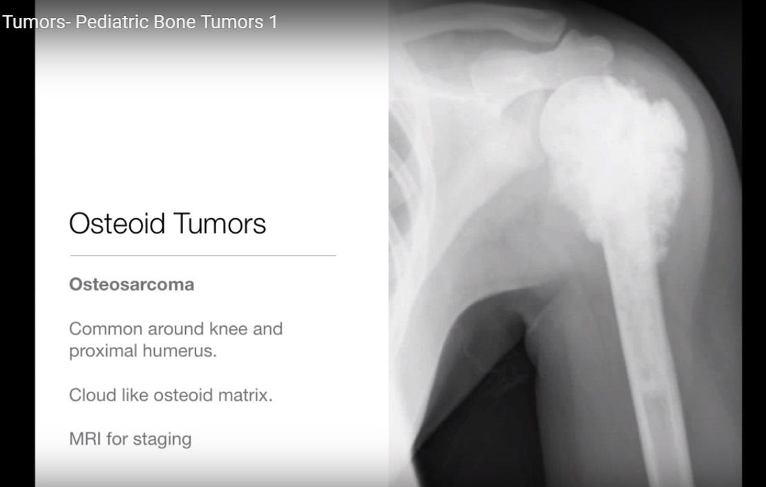 Radiology of Paediatric Bone Tumours