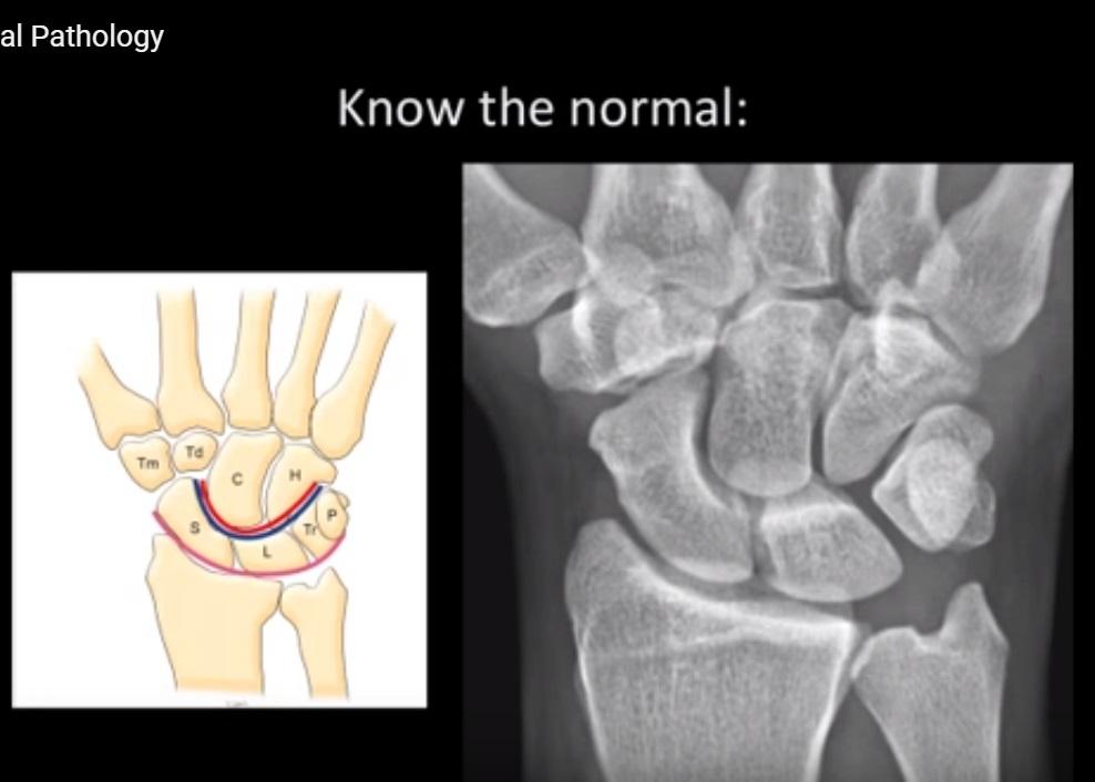 Radiology of the Carpus
