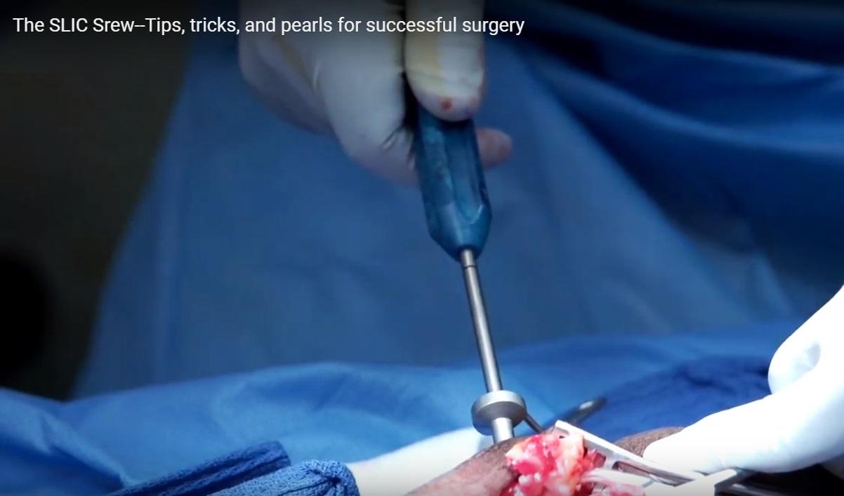 SLIC screw