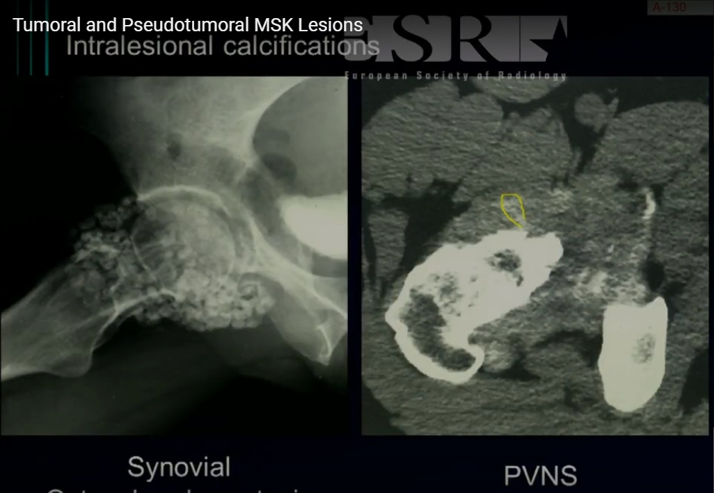 Tumoral and Pseudotumoral lesions of the Musculoskeletal System